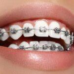 عيوب-تقويم-الاسنان