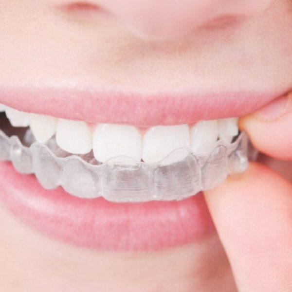 لا يمكن رؤية جهاز التقويم الشفاف عند وضعه على الأسنان-(أرشيفية)